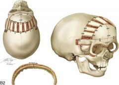 3D printing printing for cranial reconstruction