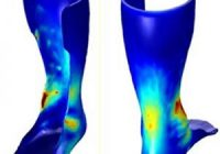 U of M launches 3D printed orthotics program