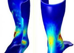 U of M launches 3D printed orthotics program